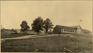 View of the State Tuberculosis Sanitarium. E. E. Clovis, M. D., Superintendent. This institution is located two miles east of Terra Alta, Preston county, on the main line of the Baltimore and Ohio Railroad. The local station is called Hopemont, but only local trains stop here. All passenger trains stop at Terra Alta, which is the express and post office. Number of patients treated during June, 1914 was 65.